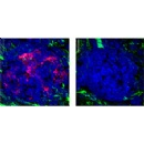 Tumor suppressor protein plays key role in maintaining immune balance
