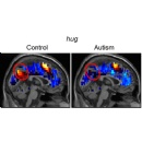 Carnegie Mellon Researchers Discover Brain Representations of Social Thoughts Accurately Predict Autism Diagnosis